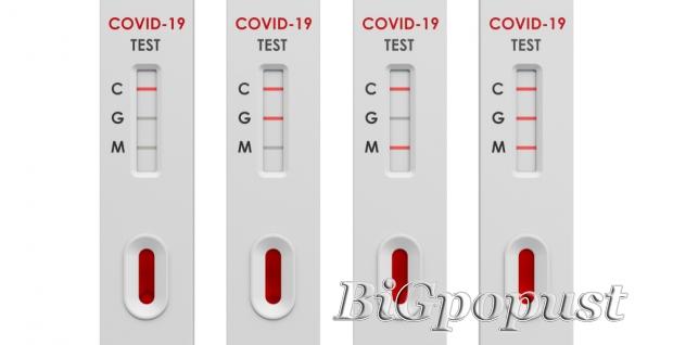 sars, cov2, , ukupna, antitela, na, covid, igmigg, , 2800, rsd