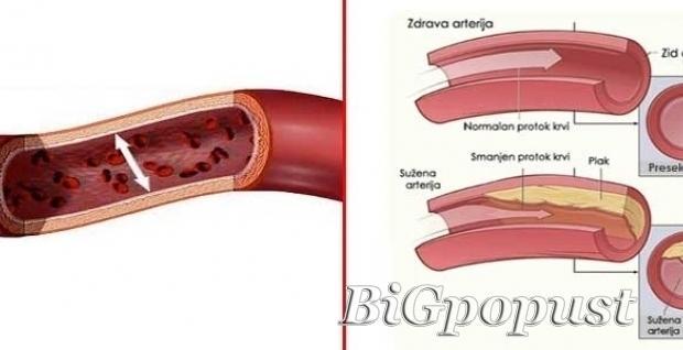 3500, rsd, sistematski, pregled, krvnih, sudova, dopler, krvnih, sudova, ruku, nogu, vrata,
