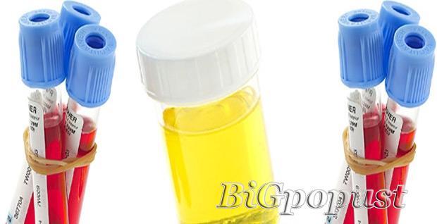 700, rsd, biohemijska, analizu, krvi, i, urina, u, laboratoriji, linlab
